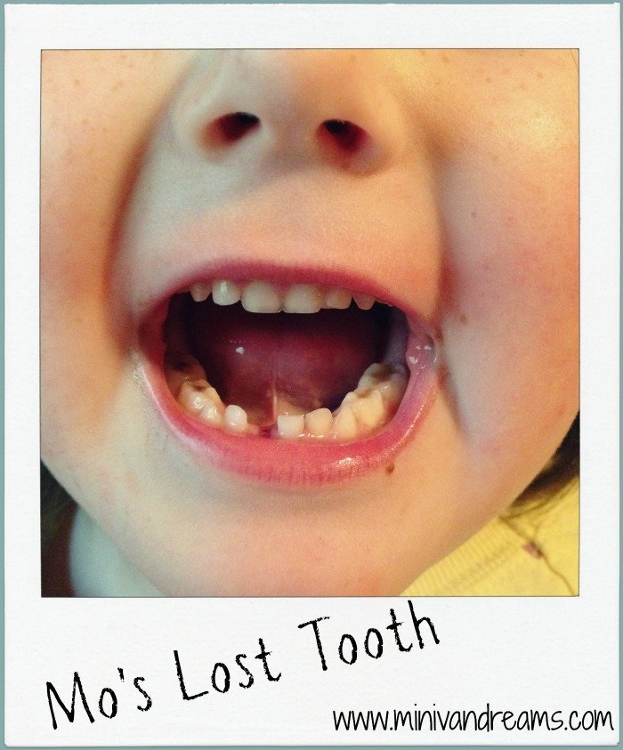 Mo's Lost Tooth | Wordless Wednesday via Mini Van Dreams