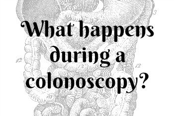 What happens during a colonoscopy? | Mini Van Dreams