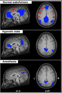 There is now scientific proof that our brains do alter during hypnosis.