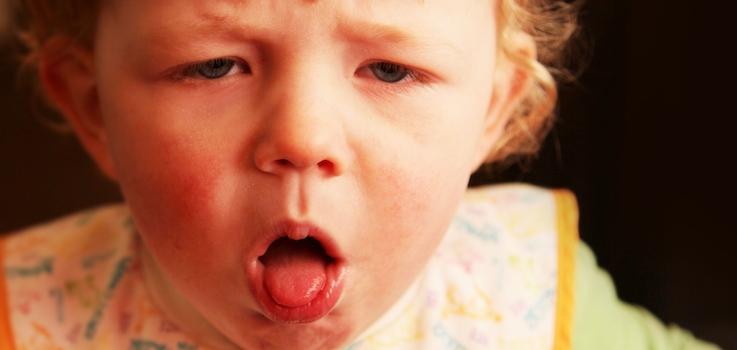 Laringitis en niños