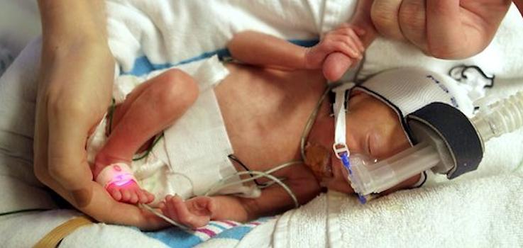 Displasia broncopulmonar en prematuros