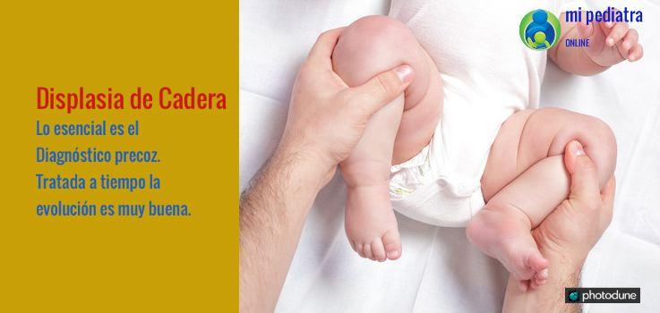 Displasia de cadera en bebés