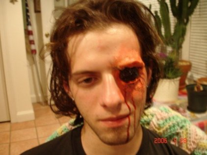 trauma, wound, sfx make up, special effects makeup, wax, liquid latex, gouged eye, missing eye, blood, horror, gore