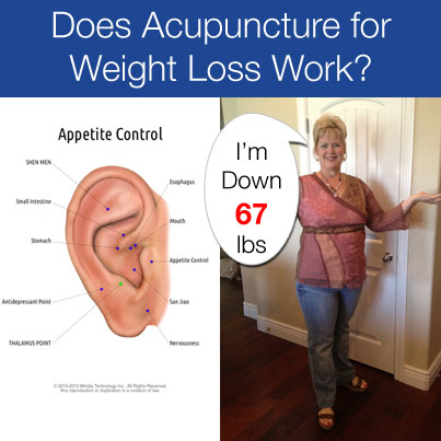 Does acupuncture for weight loss work acupuncture technology news kimberly acu for weight loss solutioingenieria Gallery