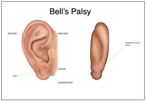 Bell's Palsy Part 2 - Acupuncture Technology News