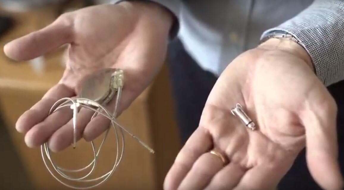 Umirovljenicima u Hrvatskoj po prvi put ugrađen najmanji pacemaker na svijetu