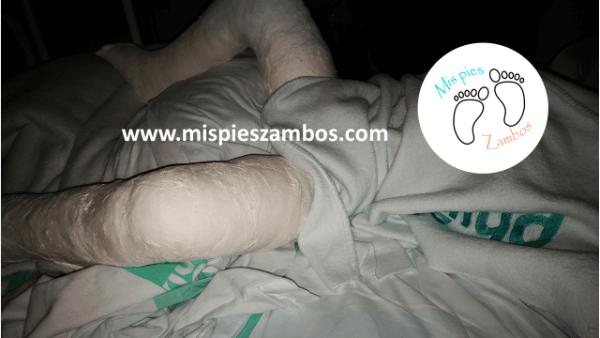 La operación de los pies zambos de mi hijo