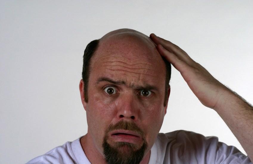 Les meilleures méthodes pour traiter naturellement la perte de cheveux chez les hommes