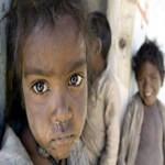 children-are-getting-victim-of-malnutrition-in-nepal