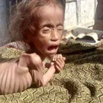 Nepal Mission Malnutrition-problem-in-Nepal NEPALESE CHILDREN ARE IN PRESS
