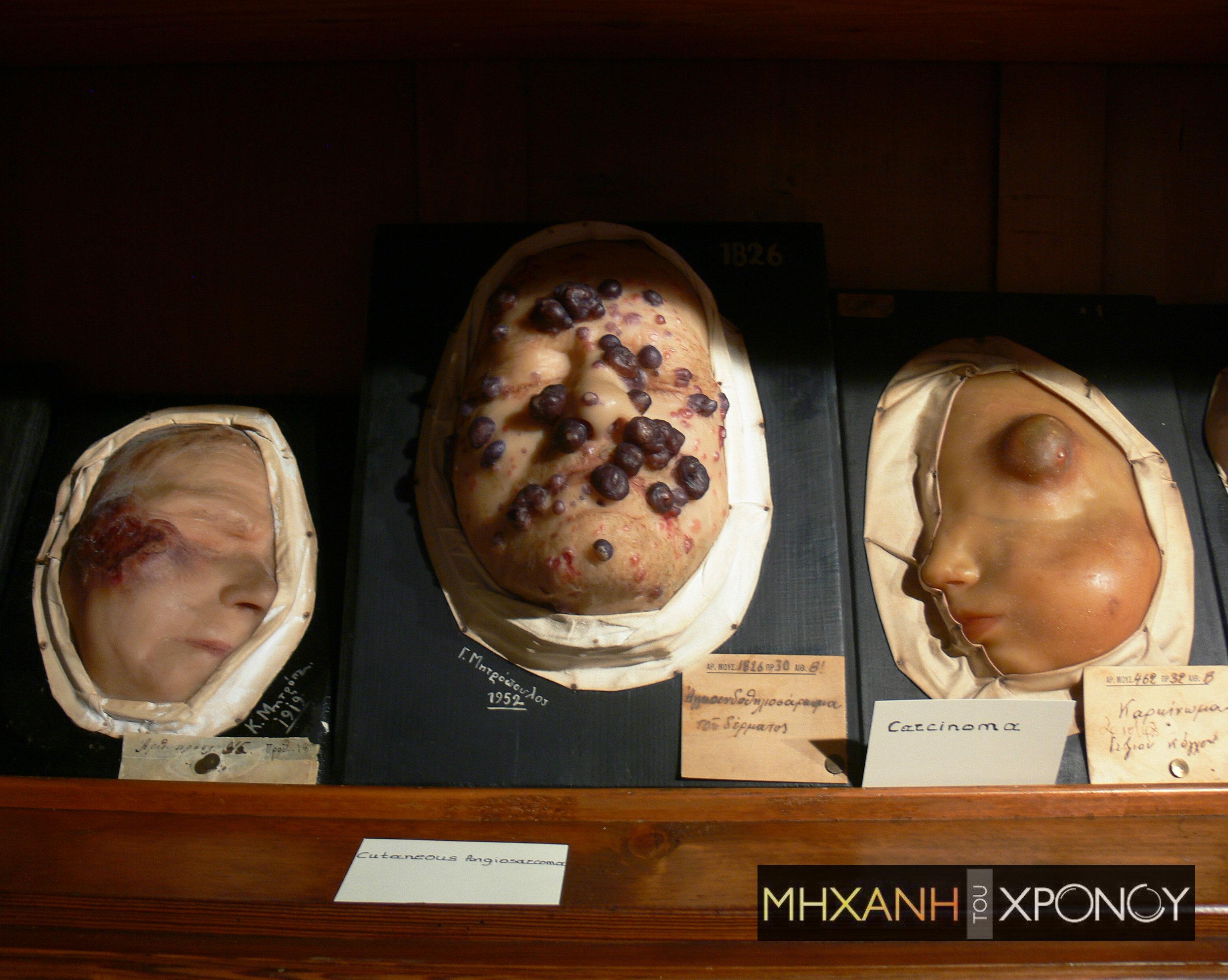 """Τα αφροδίσια νοσήματα στις αρχές του 20ου αι.μέσα από τα κέρινα ομοιώματα του νοσοκομείου """"Ανδρέας Συγγρός"""". Οι πρώτοι ασθενείς ήταν πόρνες και τραυματίες των βαλκανικών πολέμων. Προσοχή σκληρές εικόνες"""