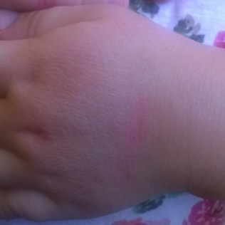 suchość rąk, o podłożu atopowym