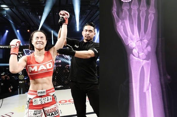 XIAOMI ROAD FC 045 XX INJURY UPDATE  HAM SEO-HEE BREAKS ARM, RAFAEL FIZIEV BREAKS HAND -