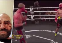 Vezi cum arată Artem Lobov, prietenul lui McGregor și adversarul său după o luptă de box fără mănuși! (VIDEO)