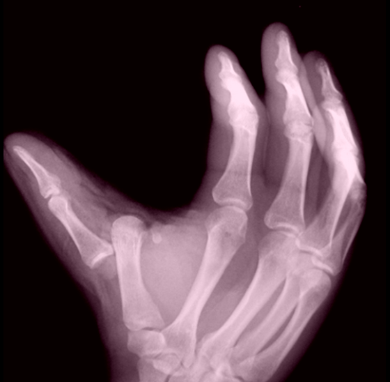 X Ray Broken Hand Roy Nelson shares brok...