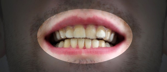 3D Druck Zahnschiene Vorher