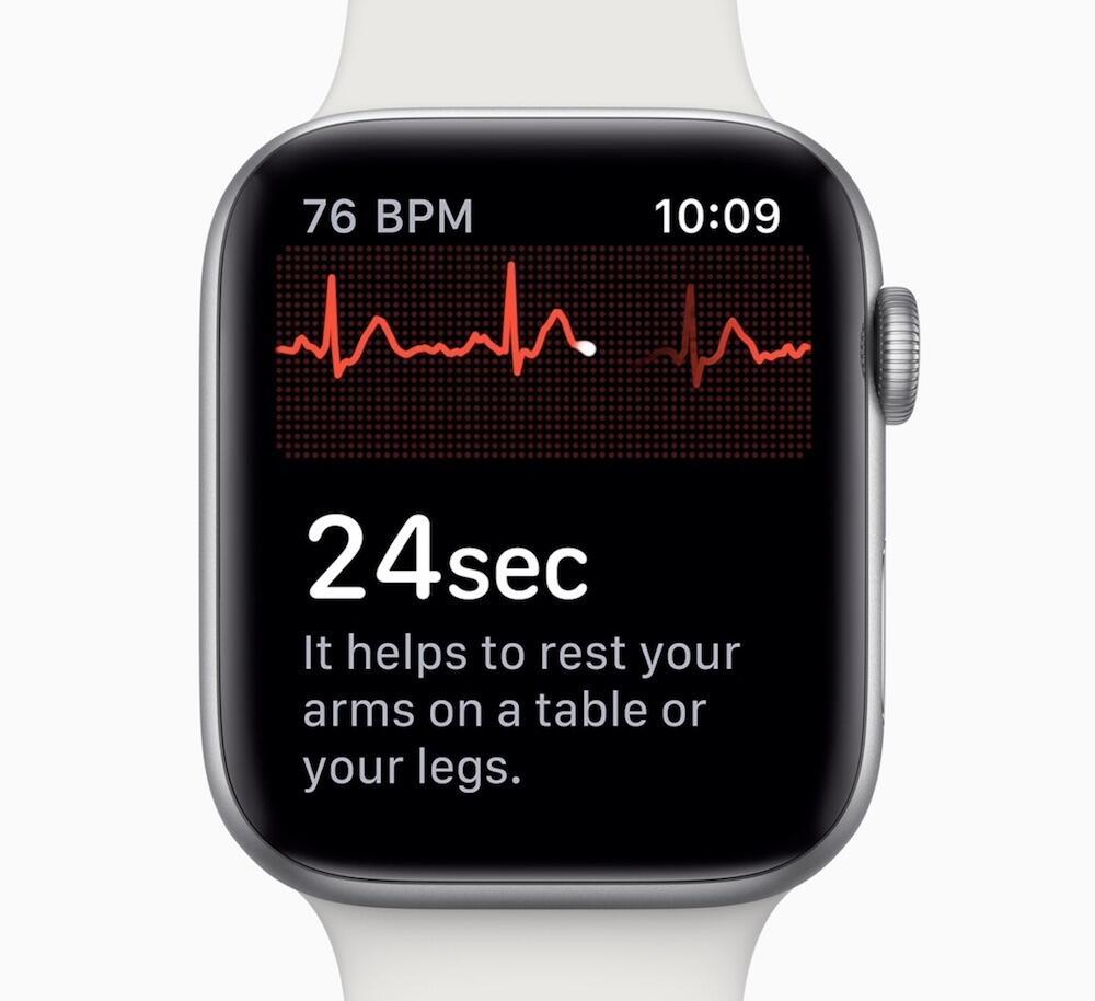 Apple Watch Ekg Detail
