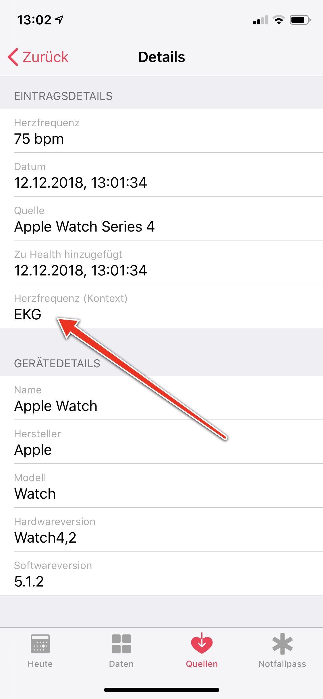 Ekg Herzfrequenz Messung Apple Watch
