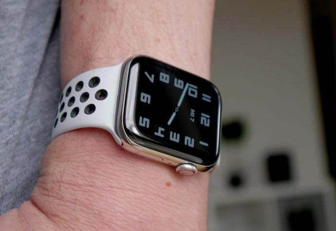 Apple Watch Series 6 Gelenk