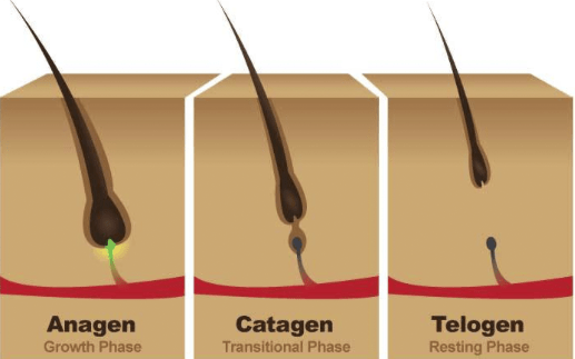 Hairs start to fall out when they are pushed to the shedding phase