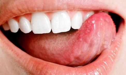 Что у вас на языке или определяем состояние здоровья по языку