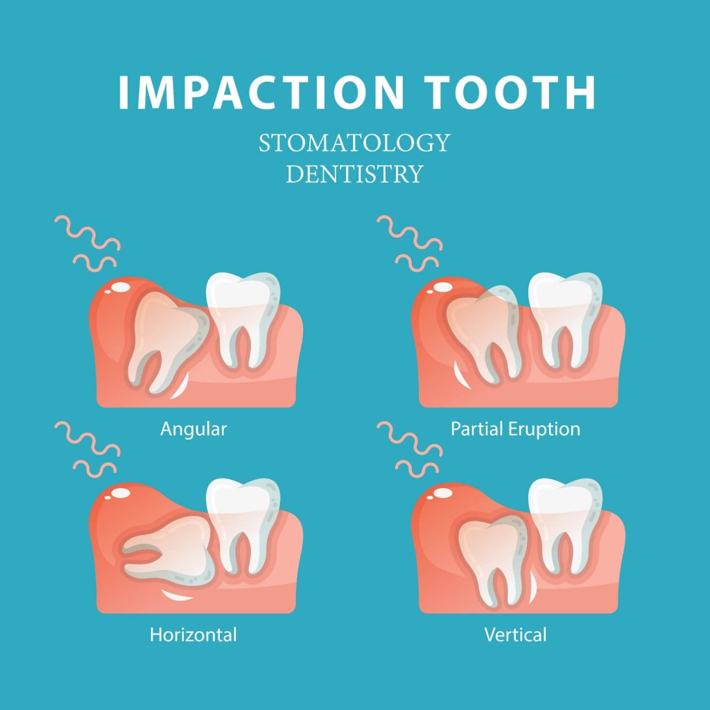 Impacted Wisdom Tooth Symptoms Causes Amp Treatment