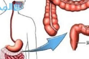 علاج القولون العصبي الدكتور جابر القحطاني