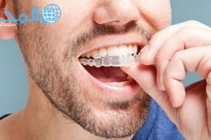 دليل افضل مراكز تقويم اسنان في السعودية