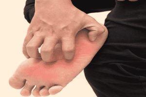 طريقة علاج حرارة القدمين جابر القحطاني
