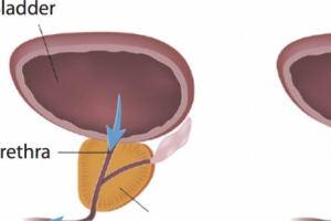 علاج التهاب احتقان البروستاتا المزمن نهائيا