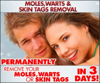 Skin Mole, Warts & Skin Tags Removal™