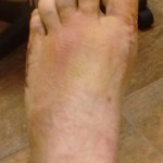 Austin Bunionectomy & Tailor's Bunion Surgery Recovery: The First Week