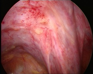 endometriosi sottile