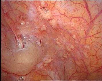 endosalpingiose