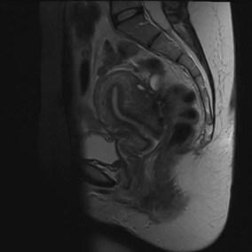 adenomyosi nodulare