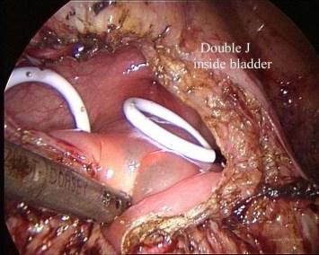 endometriosi profonda della vesica