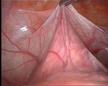 isterectomia : 2 vescica