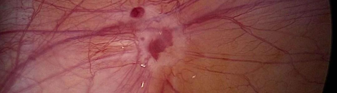 endometriosi sottile superficiale
