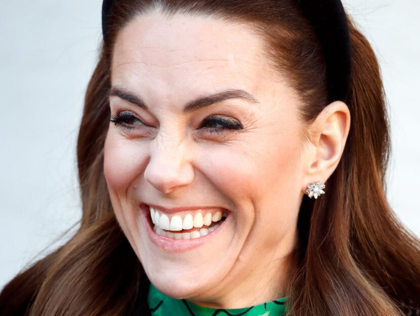 Kate Middleton: le mancano quattro denti