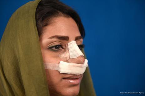 Imagen de Nuna tras una rinoplastia llevada a cabo por el Dr. Hamit Riza Husnani en una clínica de cirugía estética en Teherán, Irán, 9 de octubre de 2017 [Fatemeh Bahrami / Anadolu Agency]