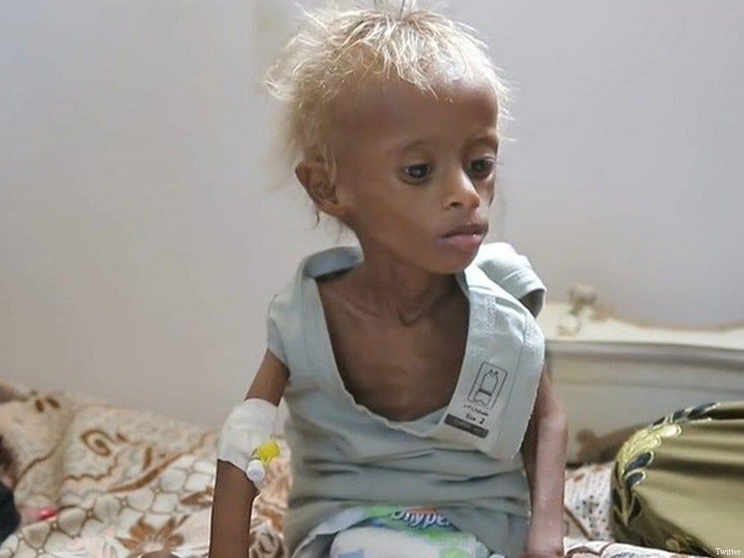 'O Iêmen já é a pior crise humanitária do mundo e rapidamente caminha à fome', reiterou Mohsin Siddiqui, diretor da Oxfam no país árabe, em coletiva de imprensa [foto de arquivo]