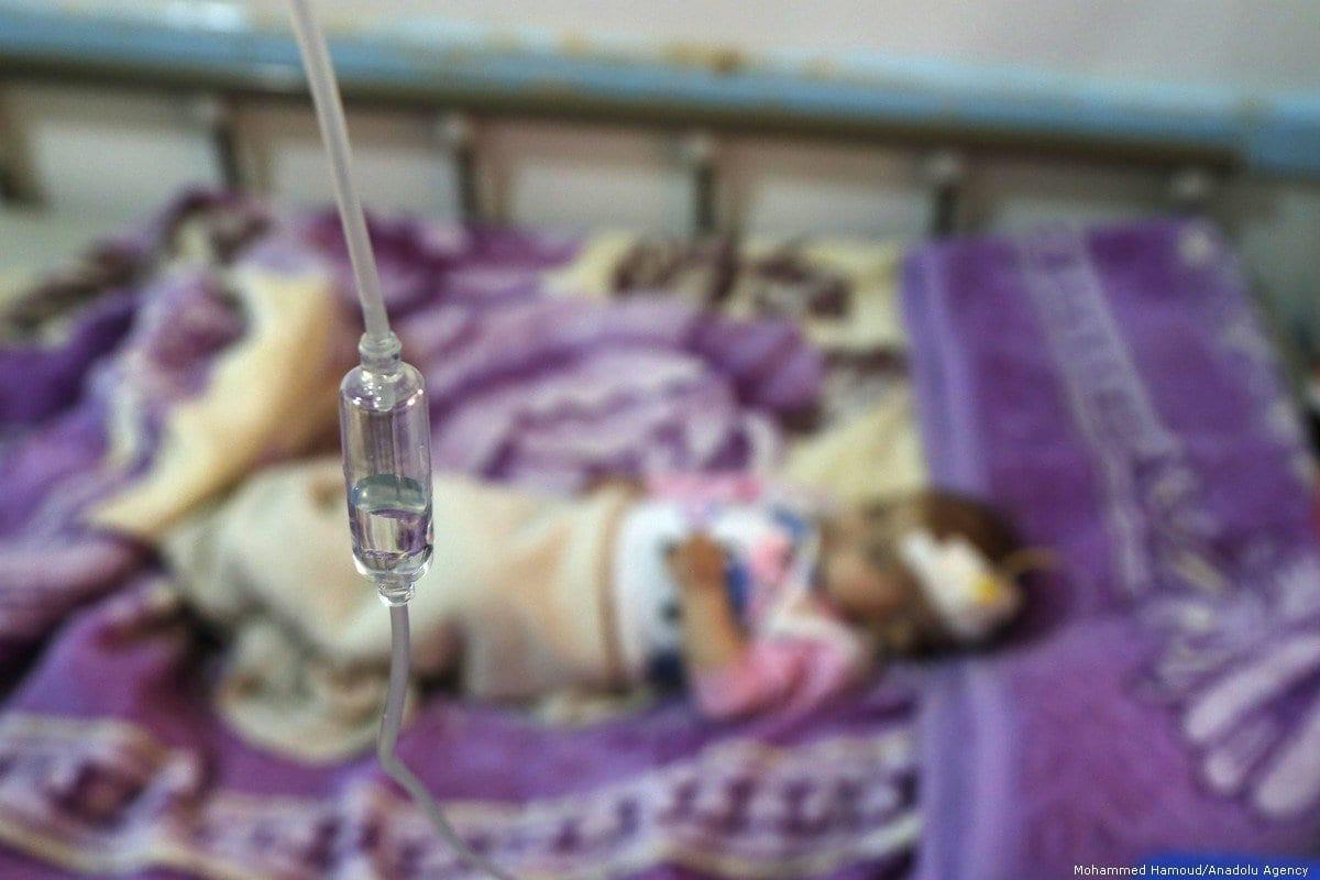 Criança desnutrida recebe tratamento no hospital de Sabeen, em Sanaa, capital do Iêmen, 7 de outubro de 2019 [Mohammed Hamoud/Agência Anadolu]