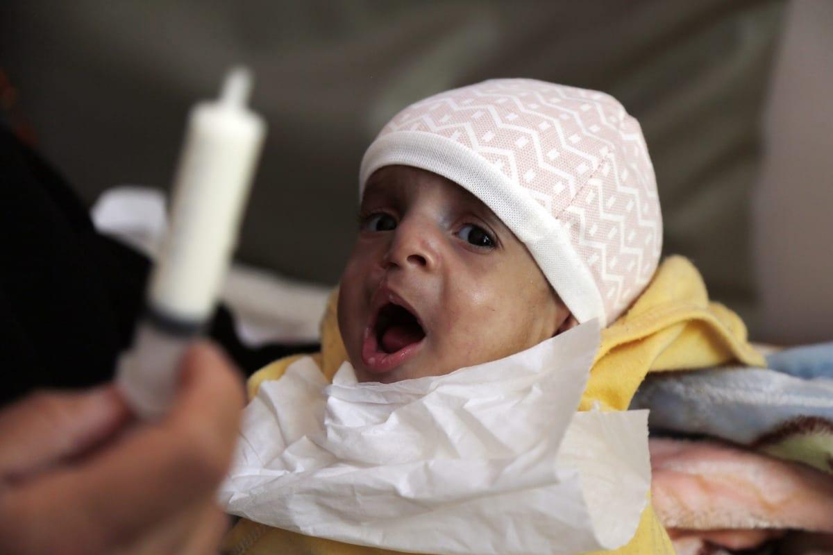 Um bebê iemenita recebe tratamento no Hospital Sabeen, em 13 de janeiro de 2021, em Sanaa, Iêmen. [Mohammed Hamoud/Agência Anadolu]