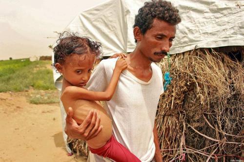 Menina iemenita de 8 anos, com apenas 9,5 kg devido à grave desnutrição, e seu pai, na província de Hajjah, norte do Iêmen, 23 de setembro de 2020 [Essa Ahmed/AFP/Getty Images]