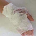 Crème anesthésiante sur la main