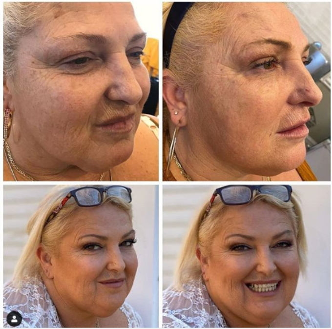 Angela Deem before and after Botox