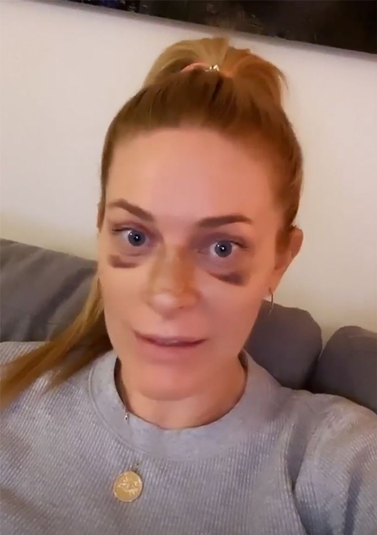 RHONY star Leah McSweeney shared stories to Instagram showing the star with bruises under her eyes.