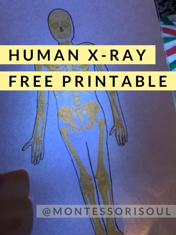 Human X-ray printable