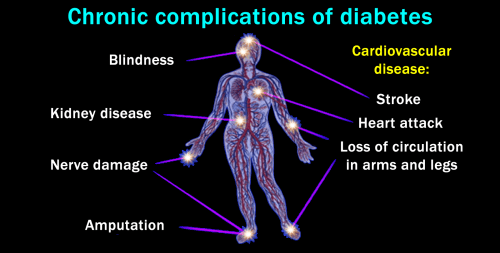 Diabetes_Complication_Moonee_Ponds