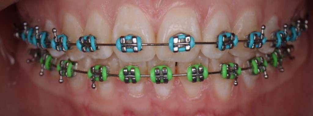 ortodoncia orthodontics